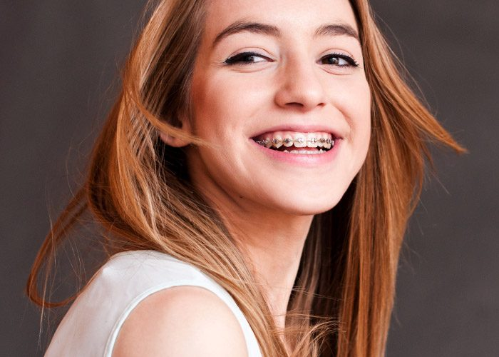 Women with braces dating